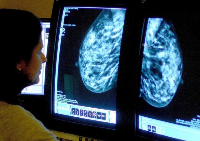 Some breast cancer tumours can make hormones themselves. Picture: PA