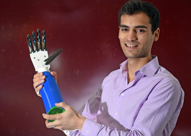 Scottish students including George Dzavaryan have developed a groundbreaking prototype of affordable 3D-printed prosthetic arms. Picture: Neil Hanna