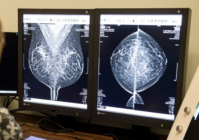 A scan for breast cancer is checked