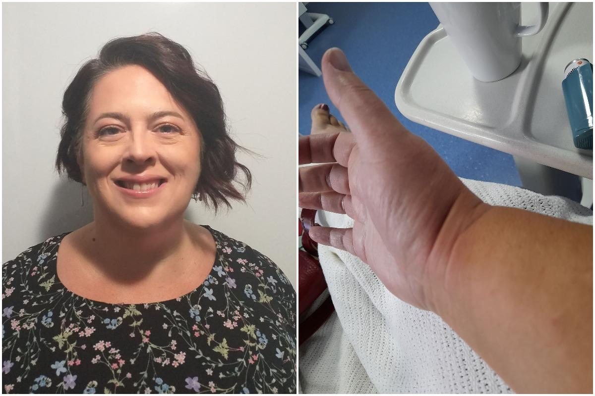 'It felt like someone poured boiling water on my hand' - woman stung by giant jellyfish in Scottish waters