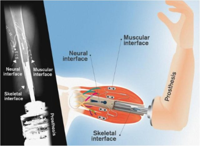 The new bionic arm could be available within 2 years