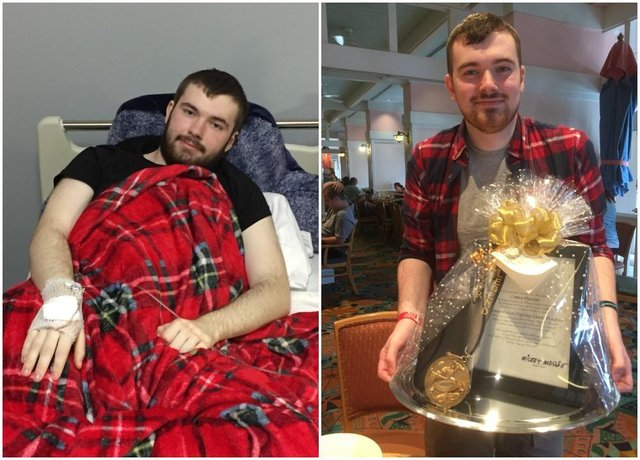 Connor during and after treatment.